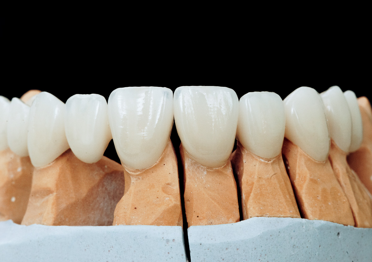 Advantages of metal-free dental implants and the difference of zirconia