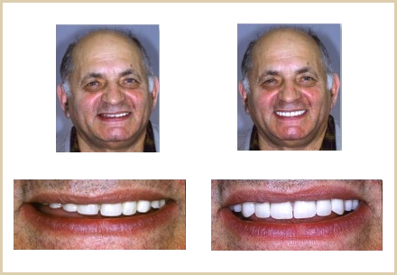 Dental Implant 01