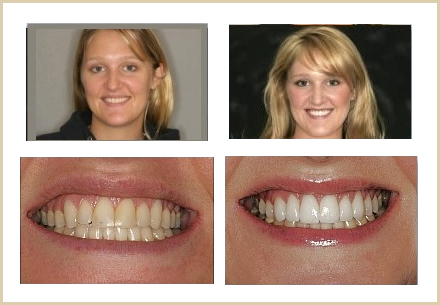 Smile Makeover/Cosmetic Dentistry Actual patients results