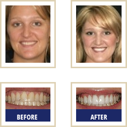 Cosmetic Dentistry Carlsbad - Image for Smile Makeover
