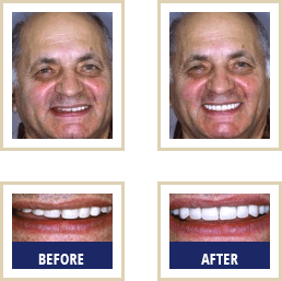 Mercury Free Dentist Carlsbad - Before After 01