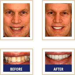 Mercury Free Dentist Carlsbad - Before After 02