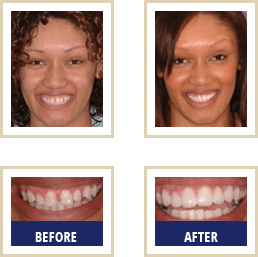 Dental Care Carlsbad - Before After 03