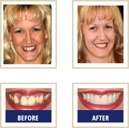 Mercury Free Dentist Carlsbad - Before After 04