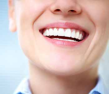 Image of a smilling lady with a brighter teeth